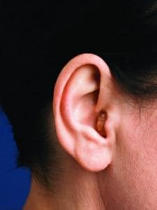 Orelha com o aparelho auditivo CIC colocado
