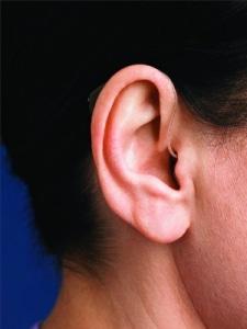 Orelha com o aparelho auditivo RIC colocado